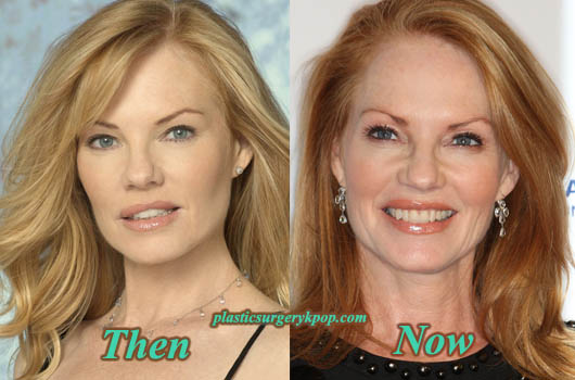 MargHelgenbergerPlasticSurgeryPicture Marg Helgenberger Plastic Surgery Before and After Photos