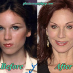 Marilu Henner Plastic Surgery Before After Pictures