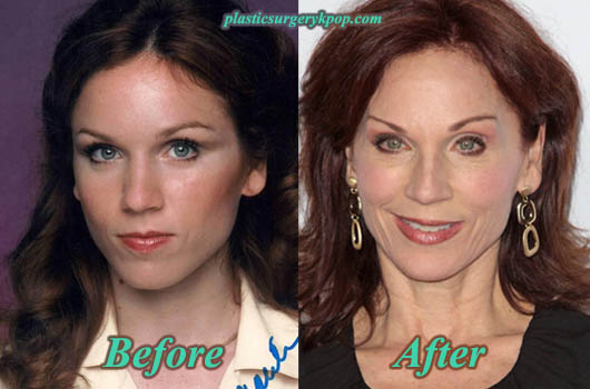 MariluHennerPlasticSurgery Marilu Henner Plastic Surgery Before After Pictures