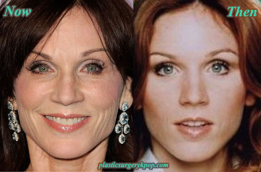 MariluHennerPlasticSurgeryPicture Marilu Henner Plastic Surgery Before After Pictures