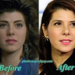 MarisaTomeiPlasticSurgery 150x150 Ashley Greene Plastic Surgery Nose Job Before and After