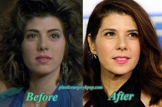 MarisaTomeiPlasticSurgery Marisa Tomei Plastic Surgery Before & After Pictures