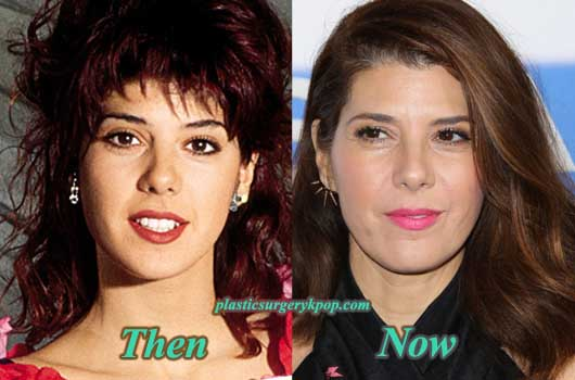MarisaTomeiPlasticSurgeryPicture Marisa Tomei Plastic Surgery Before & After Pictures