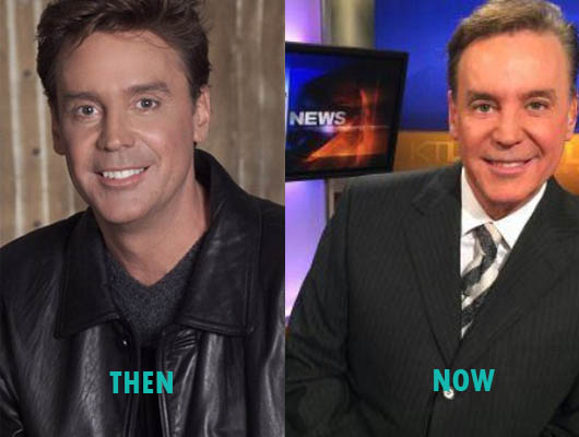 Mark Kriski Plastic Surgery Mark Kriski Plastic Surgery Before and After