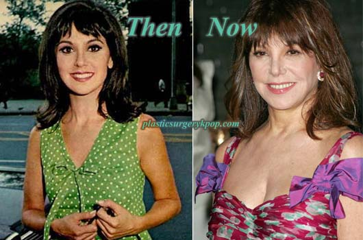 MarloThomasBoobJob Marlo Thomas Plastic Surgery Before After Photos