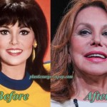 Marlo Thomas Plastic Surgery Before After Photos