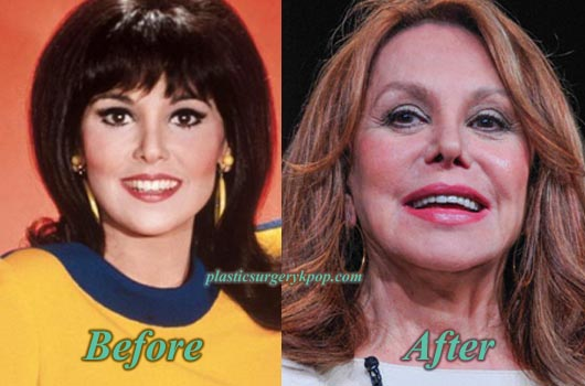 MarloThomasPlasticSurgery Marlo Thomas Plastic Surgery Before After Photos
