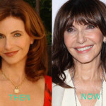 Mary Stenburgen Plastic Surgery Before and After
