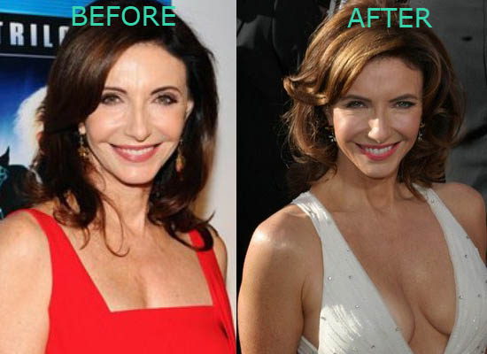 Mary Stenburgen Plastic Surgery Before After Mary Stenburgen Plastic Surgery Before and After