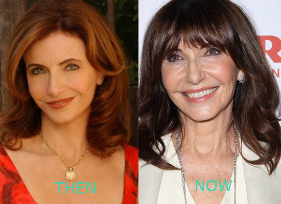 Mary Stenburgen Plastic Surgery Mary Stenburgen Plastic Surgery Before and After