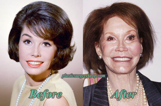 MaryTylerMooreFacelift Mary Tyler Moore Plastic Surgery Facelift, Botox Before After Pictures