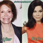 Mary Tyler Moore Plastic Surgery Facelift, Botox Before After Pictures