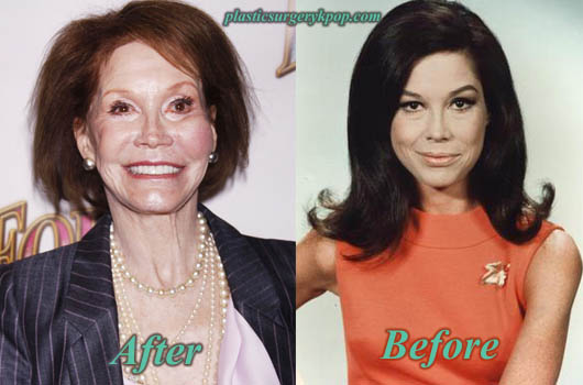 MaryTylerMoorePlasticSurgery Mary Tyler Moore Plastic Surgery Facelift, Botox Before After Pictures