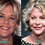 Meg Ryan Plastic Surgery Lip Augmentation Before After Picture