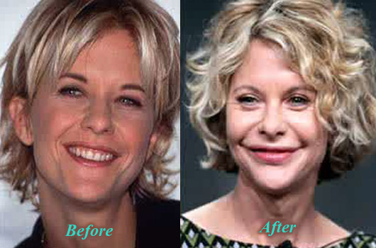 MegRyanPlasticSurgery Meg Ryan Plastic Surgery Lip Augmentation Before After Picture