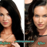 Megan Fox Plastic Surgery Before After Pictures
