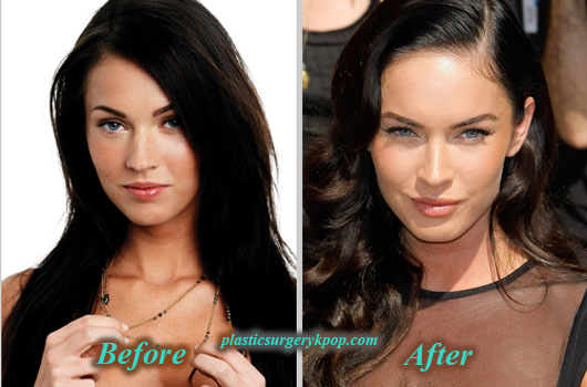 MeganFoxPlasticSurgery Megan Fox Plastic Surgery Before After Pictures