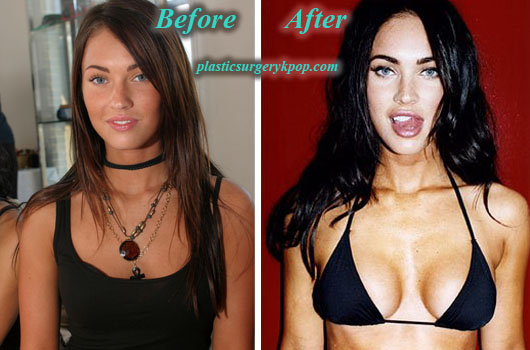 MeganFoxPlasticSurgeryBreastImplants Megan Fox Plastic Surgery Before After Pictures