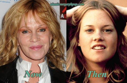 MelanieGriffithLipsAugmentation Melanie Griffith Plastic Surgery Photos Before After