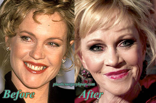MelanieGriffithPlasticSurgery Melanie Griffith Plastic Surgery Photos Before After