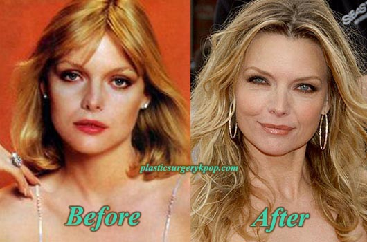 MichellePfeifferNoseJob Michelle Pfeiffer Nose Job Plastic Surgery Before and After Pictures