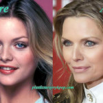Michelle Pfeiffer Nose Job Plastic Surgery Before and After Pictures