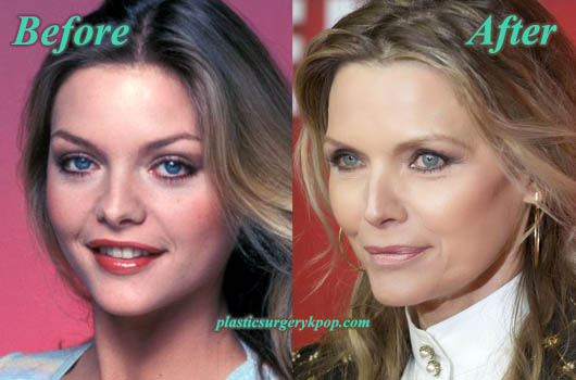 MichellePfeifferPlasticSurgeryNoseJob Michelle Pfeiffer Nose Job Plastic Surgery Before and After Pictures