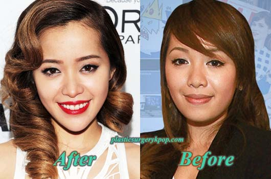 MichellePhanChinImplants Michelle Phan Plastic Surgery Before and After Pictures
