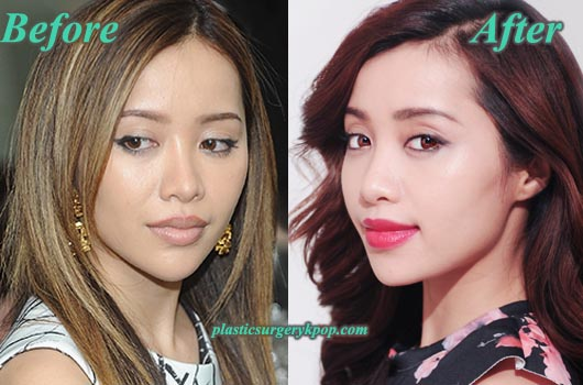 MichellePhanPlasticSurgery Michelle Phan Plastic Surgery Before and After Pictures