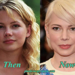 Michelle Williams Plastic Surgery Before and After Pictures