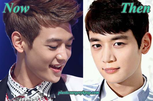 Minhoplasticsurgery Choi Minho Plastic Surgery After and Before Pictures