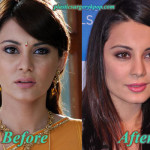 Minissha Lamba Plastic Surgery Before and After Pictures