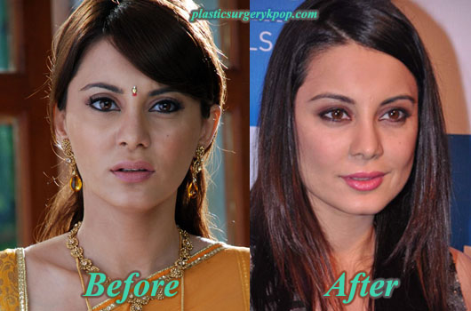 MinisshaLambaPlasticSurgery Minissha Lamba Plastic Surgery Before and After Pictures
