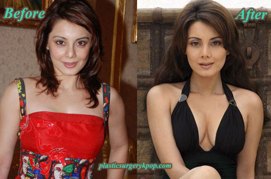 MinisshaLambaPlasticSurgeryPicture Minissha Lamba Plastic Surgery Before and After Pictures