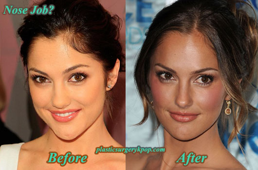 MinkaKellyNoseJob Minka Kelly Plastic Surgery Before and After Pictures