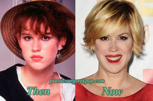 MollyRingwaldPlasticSurgery Molly Ringwald Plastic Surgery Before and After