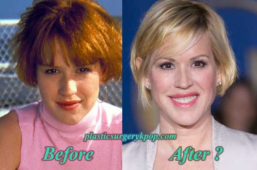 MollyRingwaldPlasticSurgeryPicture Molly Ringwald Plastic Surgery Before and After