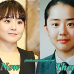 Moon Geun Young Plastic Surgery After and Before Photos