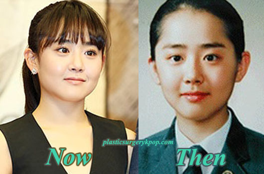 MoonGeunYoung Moon Geun Young Plastic Surgery After and Before Photos