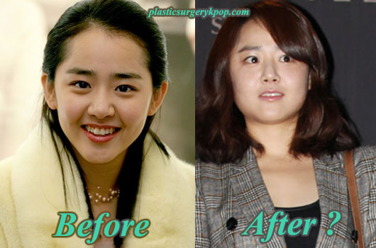 MoonGeunYoungPlasticSurgery Moon Geun Young Plastic Surgery After and Before Photos