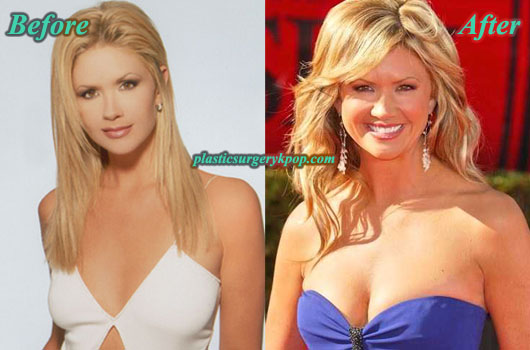 NancyODellBreastImplants Nancy ODell Plastic Surgery Before and After Pictures