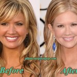 Nancy O'Dell Plastic Surgery Before and After Pictures