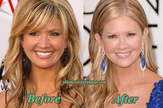 NancyODellPlasticSurgery Nancy ODell Plastic Surgery Before and After Pictures