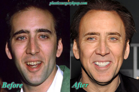 NicolasCagePlasticSurgery Nicolas Cage Plastic Surgery Before and After Pictures