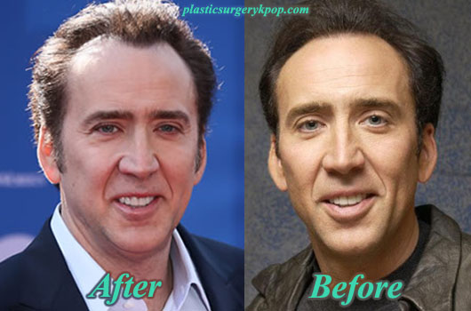 NicolasCagePlasticSurgeryPicture Nicolas Cage Plastic Surgery Before and After Pictures