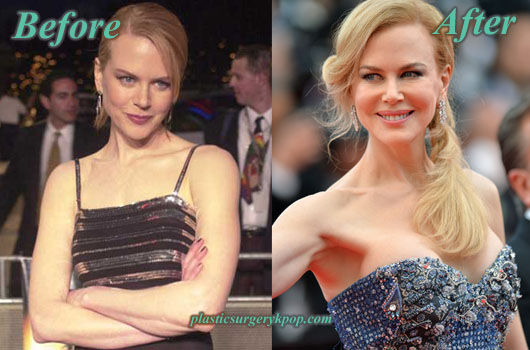 NicoleKidmanBreastImplants Nicole Kidman Bad and Good Plastic Surgery Before and After Pictures