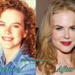 Nicole Kidman Bad and Good Plastic Surgery Before and After Pictures