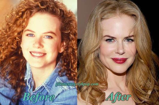 NicoleKidmanLipsAugmentationPlasticSurgery Nicole Kidman Bad and Good Plastic Surgery Before and After Pictures