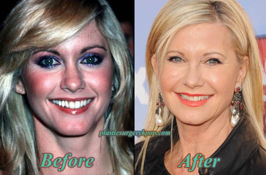 OliviaNewtonJohnBotox Olivia Newton John Before and After Plastic Surgery Pictures