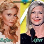 Olivia Newton John Before and After Plastic Surgery Pictures